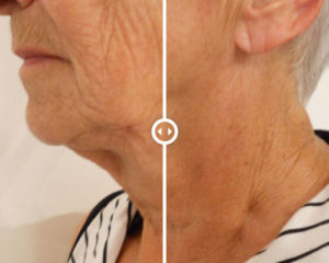 Non-Surgical Laser Face-Lift Before-After