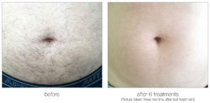belly hair removal before and after