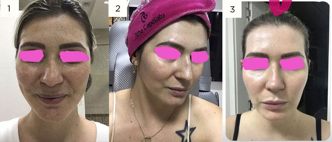Flawless MMP Dermal Perfusion Anti-melasma