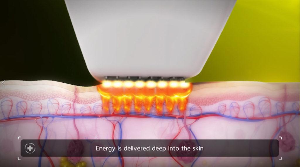 Venus Viva Skin Resurfacing Step 1