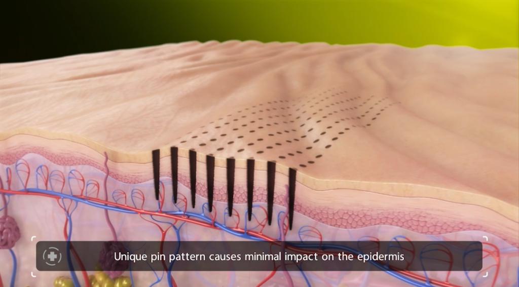 Venus Viva Skin Resurfacing Step 3