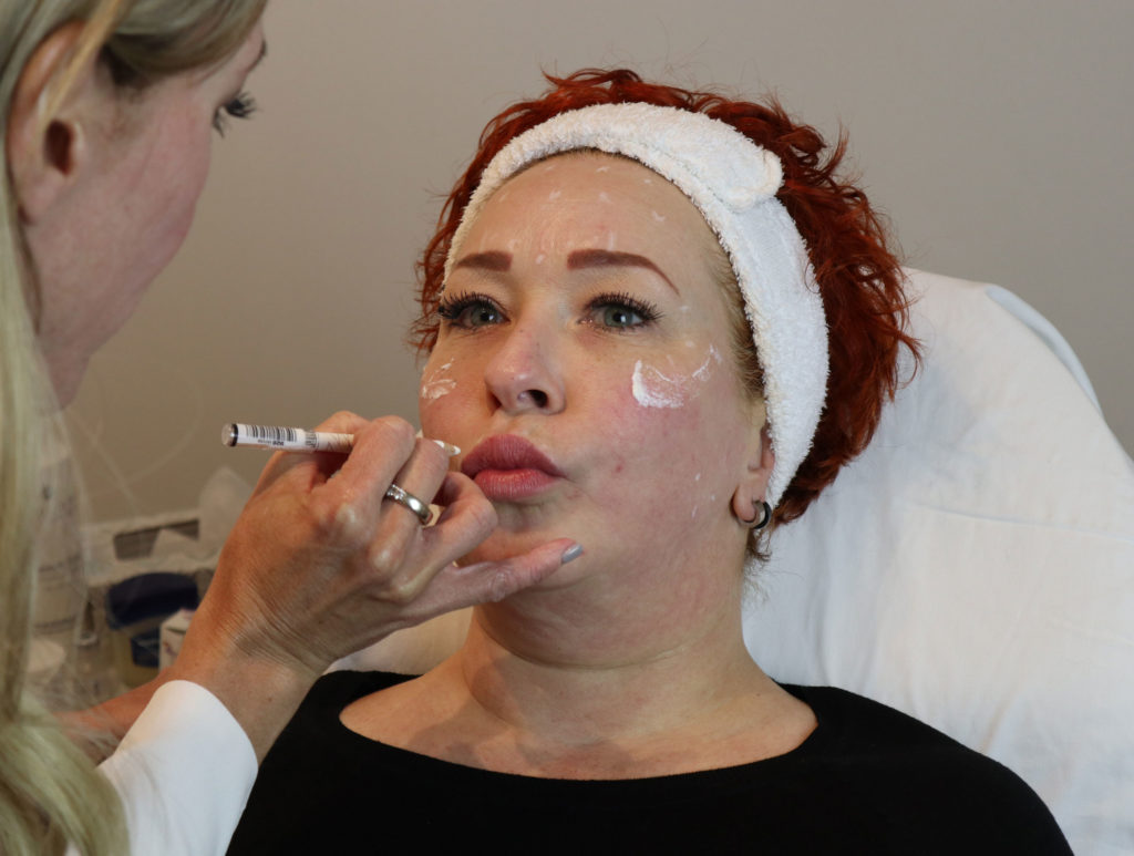 Restylane and Teosyal dermal fillers