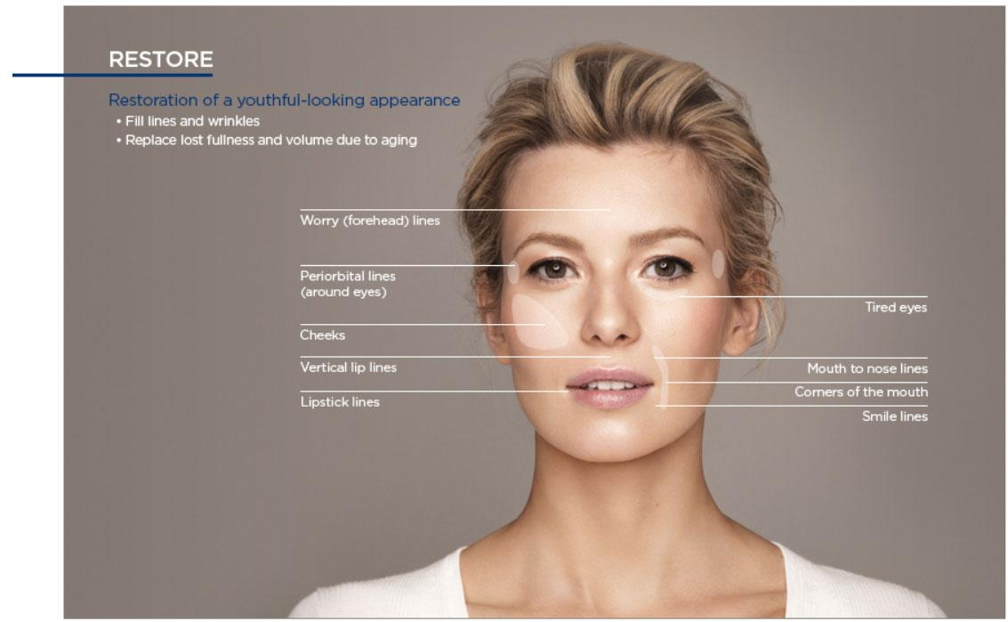 Botox treatments performed on areas of the face in Calgary