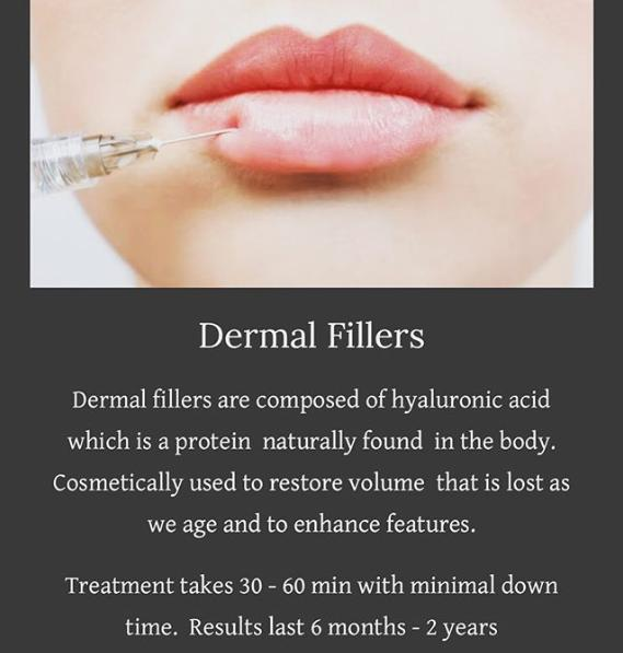 Calgary lip filler, cheek filler, under eye filler, dermal filler by a registered nurse injector