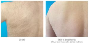 Venus Velocity laser hair removal back and armpit hair before and after Calgary