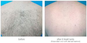 Venus Velocity laser hair removal back hair before and after Calgary