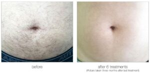 Venus Velocity laser hair removal belly before and after in Calgary