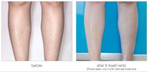 Venus Velocity laser hair removal lower legs before and after in Calgary
