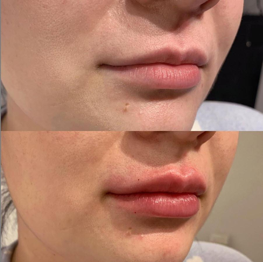 Calgary Lip Filler done right by our aesthetic registered nurse injector