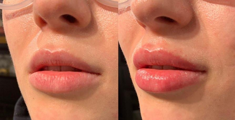 Calgary lip filler done right and for the best price