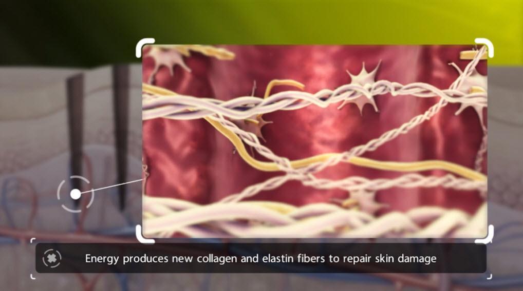Venus Viva Calgary Laser Resurfacing - energy produces new collagen and elastin fibers to repair skin damage