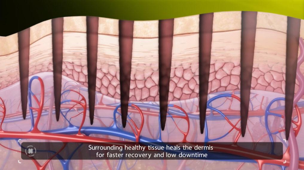 Venus Viva Calgary Laser Skin Resurfacing - Surrounding healthy tissue heals the dermis for faster recovery and low downtime