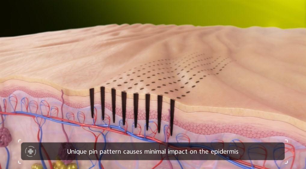 Venus Viva Calgary Skin Resurfacing - unique pin pattern causes minimal impact on the epidermis