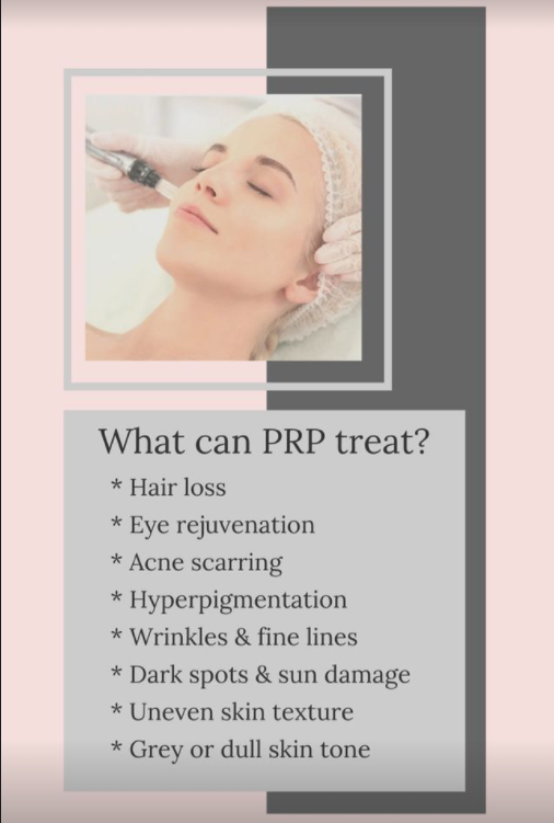 PRP treatment types in Calgary