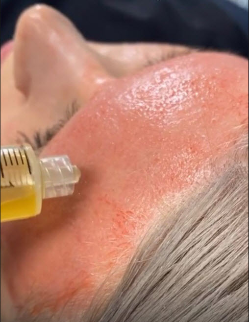 PRP injected into forehead